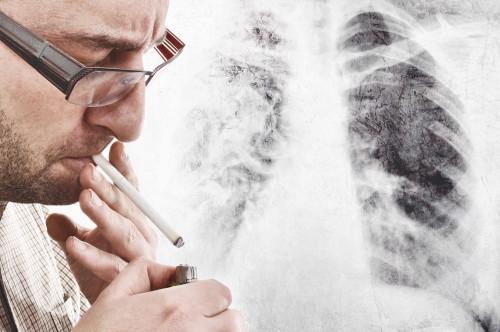 Škodlivost kouření/ilustrační foto