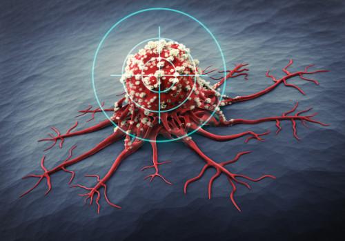 Zaměření rakoviny/ilustrační foto