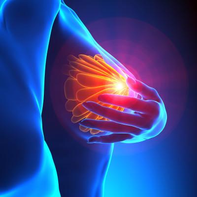 Rakovina prsu/ilustrační foto