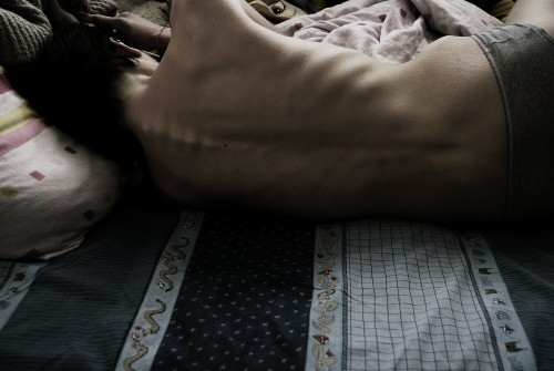 Anorexie/ilustrační foto