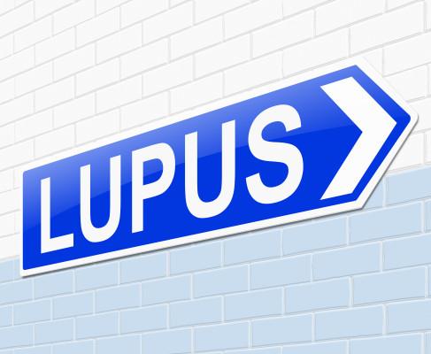 Lupus/ilustrační foto