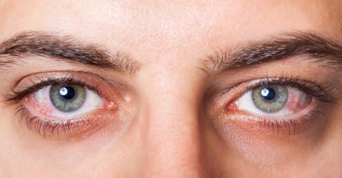Poškozený zrak/ilustrační foto