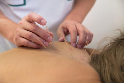 Akupunktura/ilustrační foto