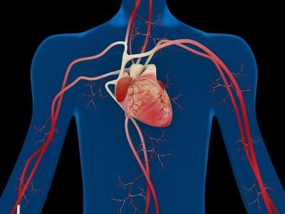 Ateroskleróza/ilustrační foto