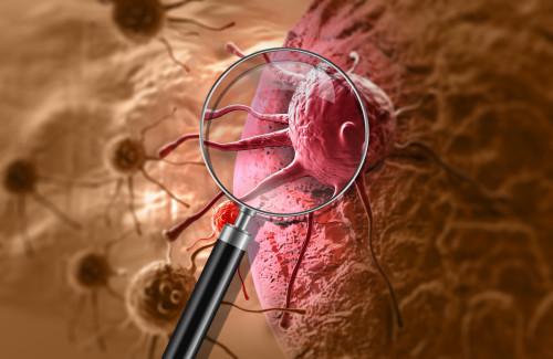 Rakovina/ilustrační foto