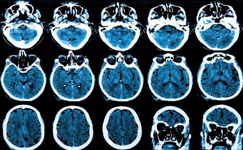 Mozek/ilustrační foto