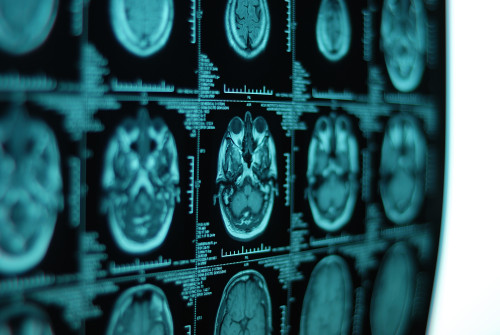 Nádor na mozku/ilustrační foto