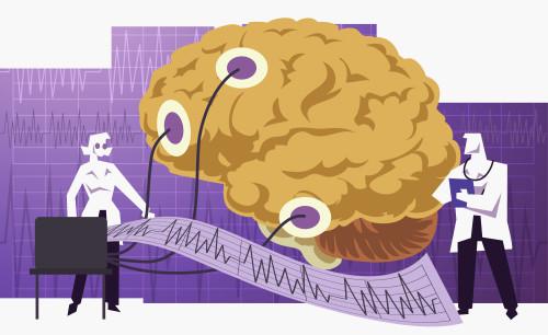 Epilepsie/ilustrační foto