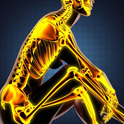 Artritida/ilustrační obrázek