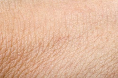 Rakovina kůže/ilustrační foto